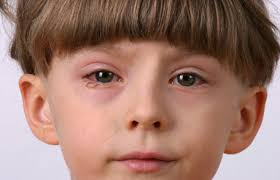 criança com conjuntivite