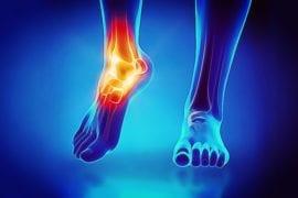 entorse ou torção do tornozelo