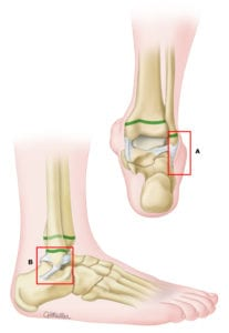 low_risk_ankle_rule