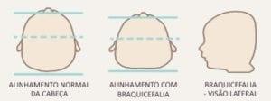 braquicefalia - visões