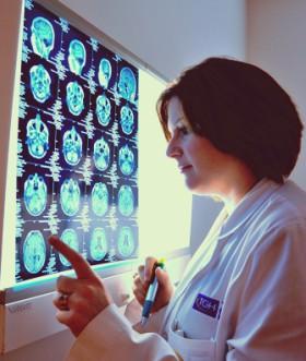 equipe de neurologia