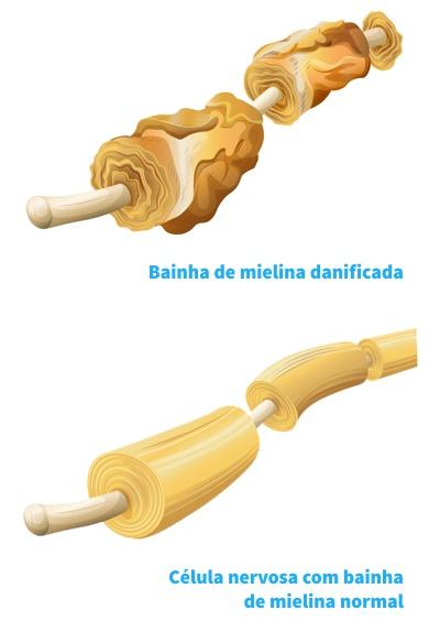 Bainhas de mielina - danos pela sindrome de guillain barre