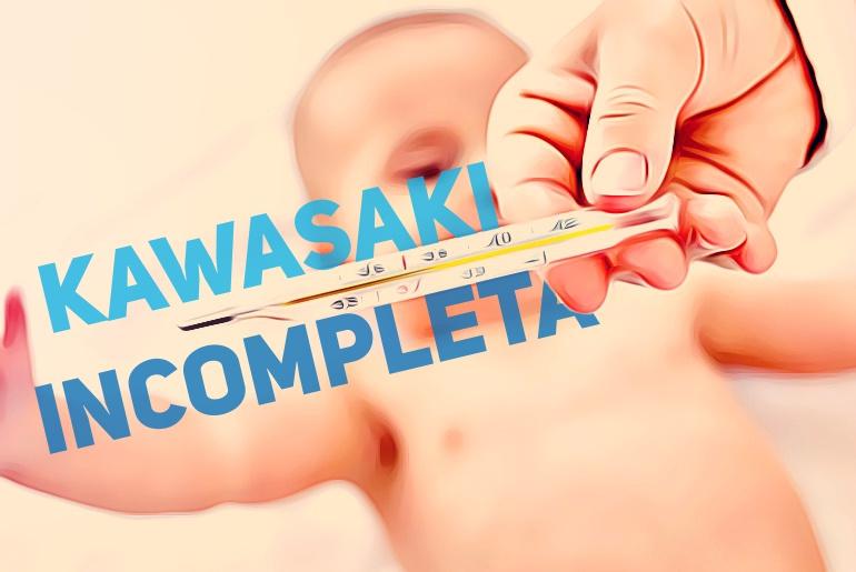 doenca de kawasaki incompleta - portalped