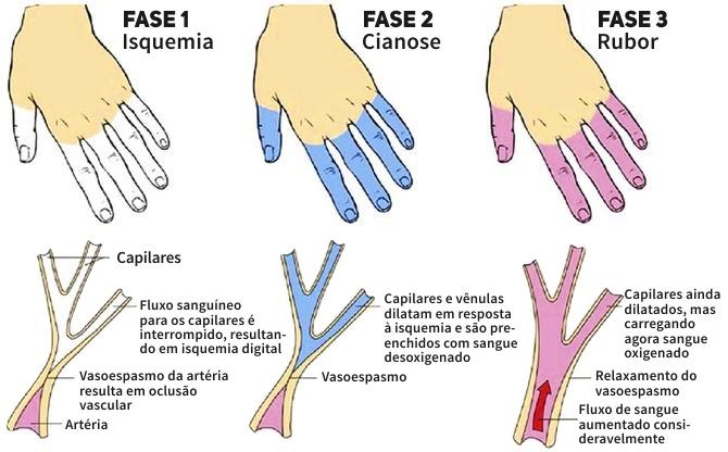 fases do fenomeno de raynaud