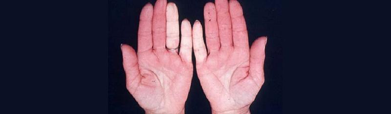 tratamento da sindrome de raynaud