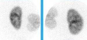 exemplo cintilografia renal