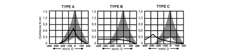 curvas timpanometricas em pediatria