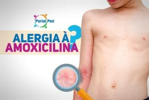 alergia a penicilina e amoxicilina 2