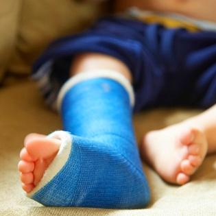 crianca com perna quebrada