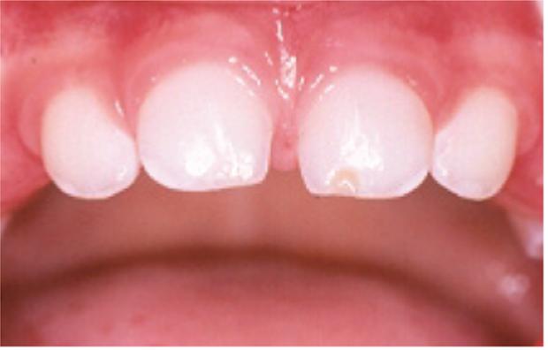 Fratura de esmalte do dente 61