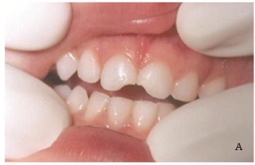 Fratura do esmalte e dentina dos dentes 51 e 61