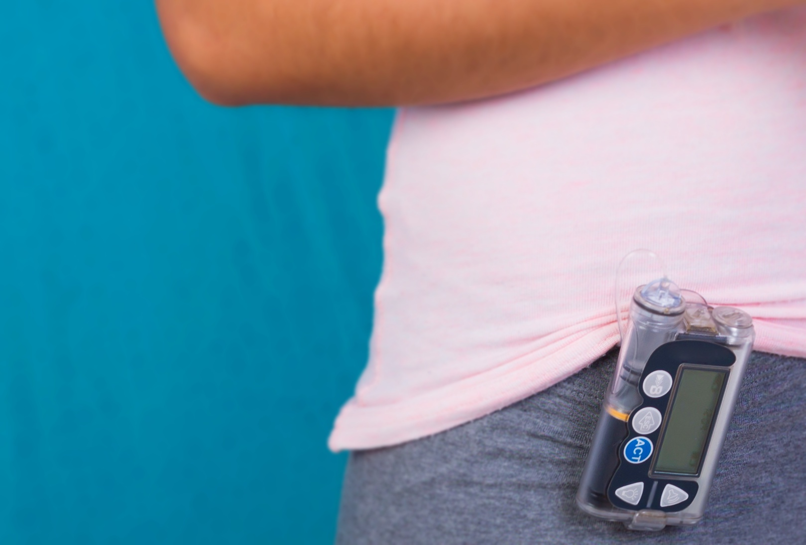 bomba de insulina tratamento diabetes tipo 1