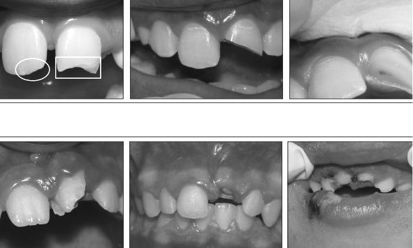 traumas dentarios - 01