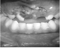 traumas dentarios - 02