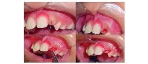 Fibrose da mucosa gengival