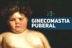 ginecomastia puberal - pediatria - social