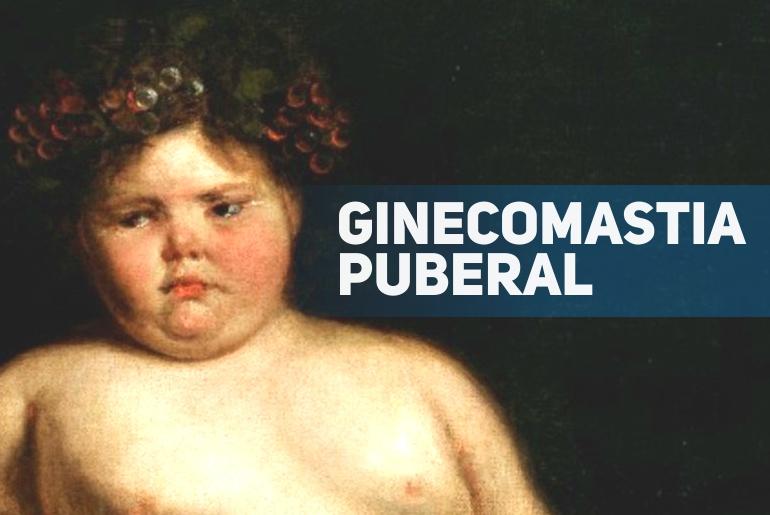 ginecomastia puberal - pediatria