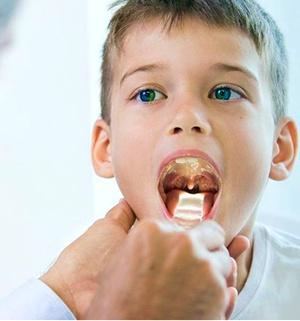 medico examinando garganta crianca