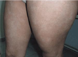 Pitiriase alba extens