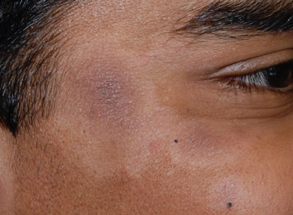 Pitiriase alba pigment