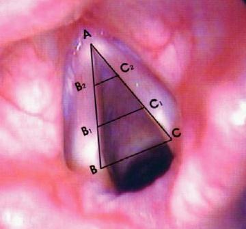 detalhamentos das pregas vocais