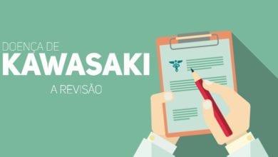 doença de kawasaki - revisao pediatria