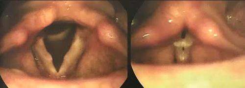 nodulos vocais