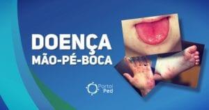 Doenca Mao-Pe-Boca Pediatria - social