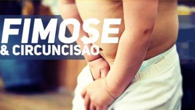 Fimose e circuncisao - pediatria - B