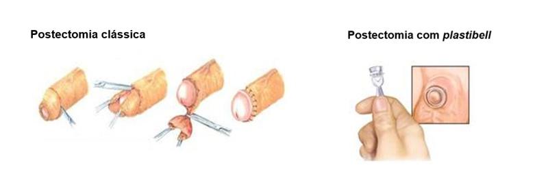 cirurgias para fimose