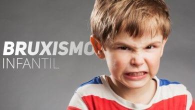 Bruxismo infantil - definicao diganostico e tratamentos - pediatria