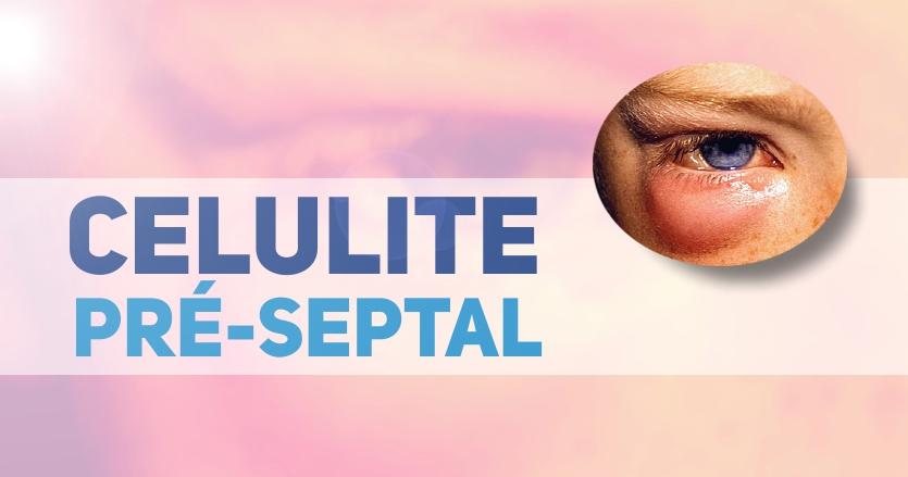 celulite pre-septal - tratamentos pediatria(1)