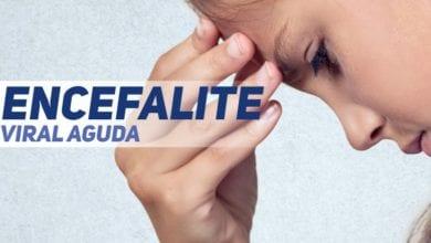 encefalite viral aguda - pediatria