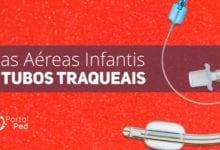 formato via aerea pediatrica e tubo traqueal com cuff D