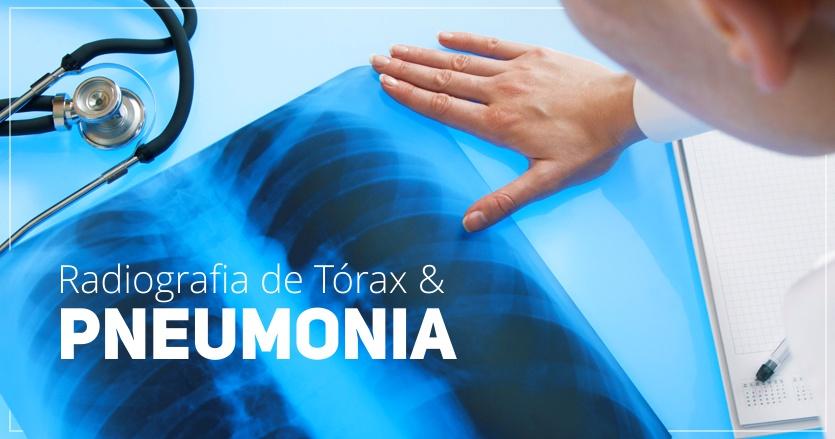 Radiografia de Torax e Diagnostico de Pneumonias