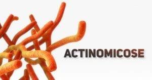 Actinomicose - pediatria