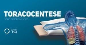 PortalPed - serie Procedimentos - Toracocentese - social