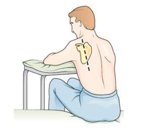posicionamento do paciente na toracocentese