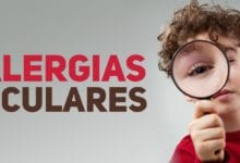 Alergias oculares - pediatria