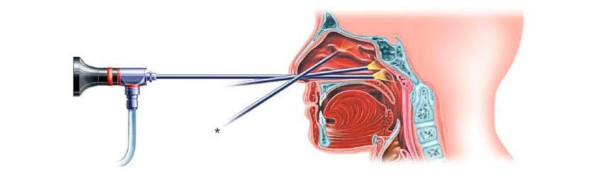 endoscopia nasal