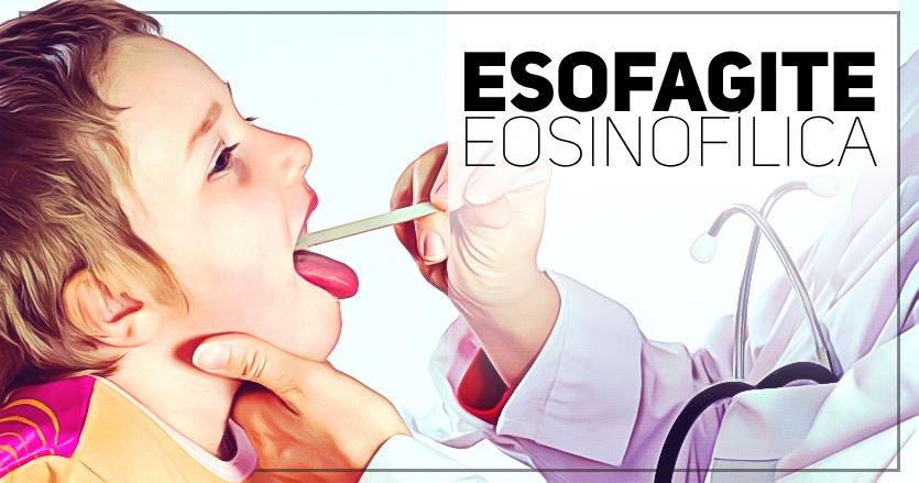 esofagite eosinofilica - pediatria
